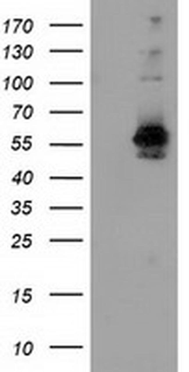 SNX8 Mouse anti-Human, Clone: OTI1E5, liquid, TrueMAB  100 µL; Unconjugated