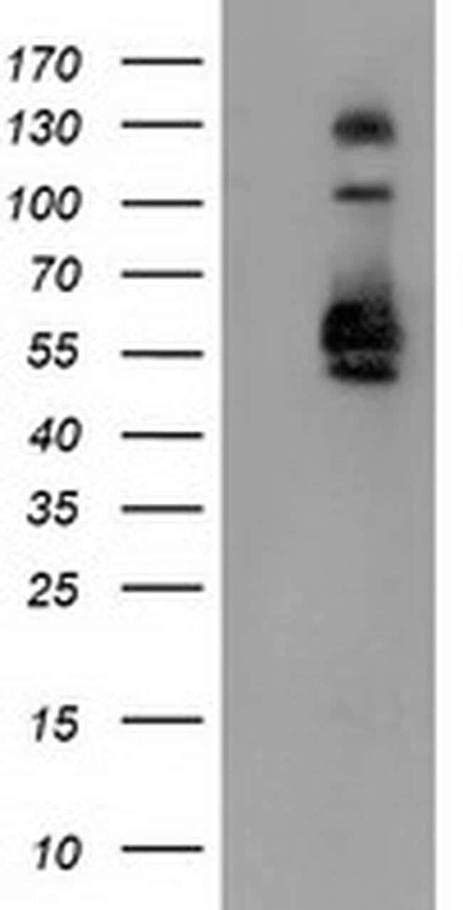 SNX8 Mouse anti-Human, Clone: OTI4F8, liquid, TrueMAB  100 µL; Unconjugated