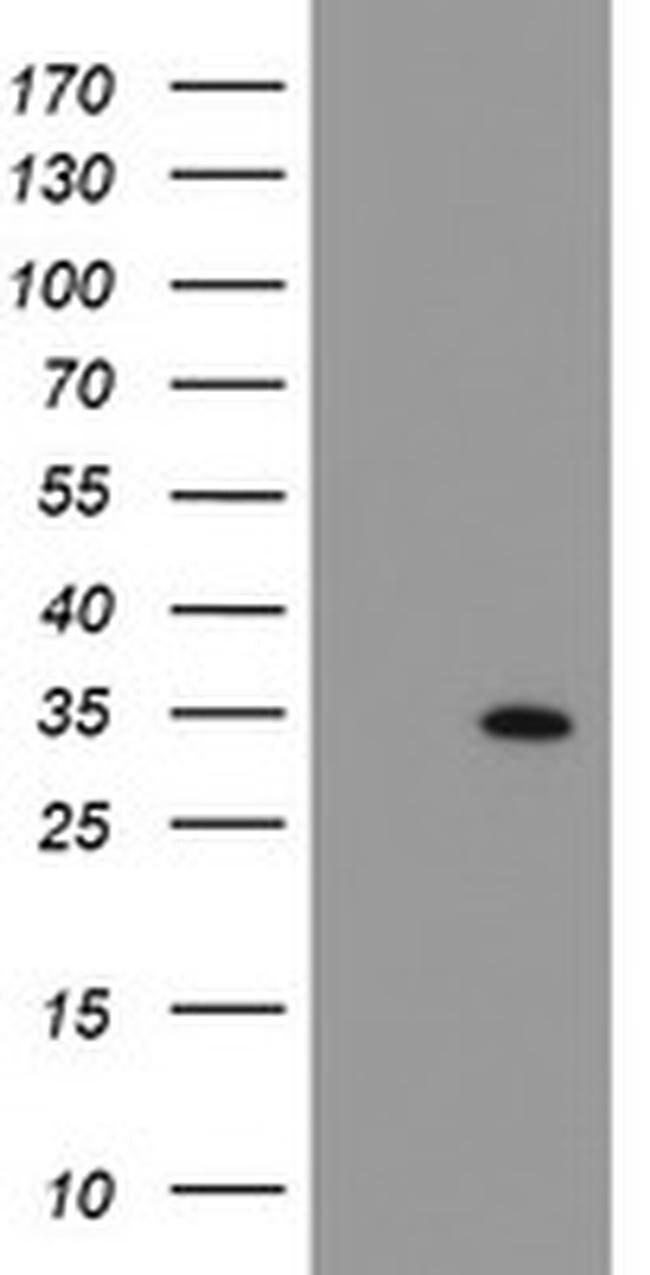 SOCS3 Mouse anti-Human, Clone: OTI5C2, liquid, TrueMAB  100 µL; Unconjugated