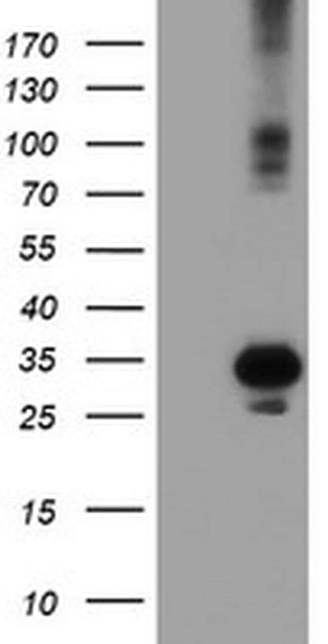 SOCS3 Mouse anti-Human, Clone: OTI15F9, liquid, TrueMAB  100 µL; Unconjugated