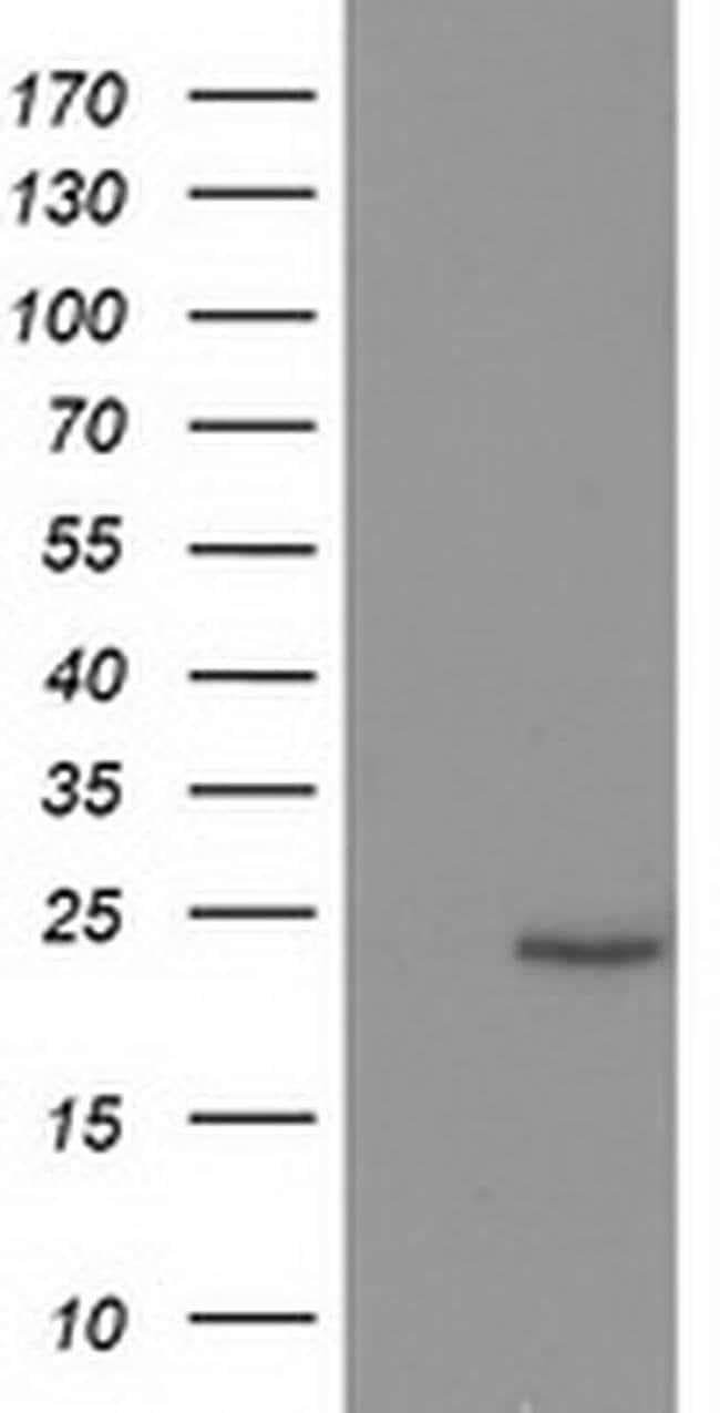 SOCS3 Mouse anti-Human, Clone: OTI3B8, liquid, TrueMAB  100 µL; Unconjugated