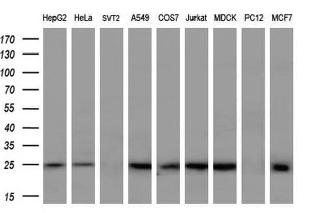 SOCS3 Mouse anti-Human, Clone: OTI7E10, liquid, TrueMAB  100 µL; Unconjugated
