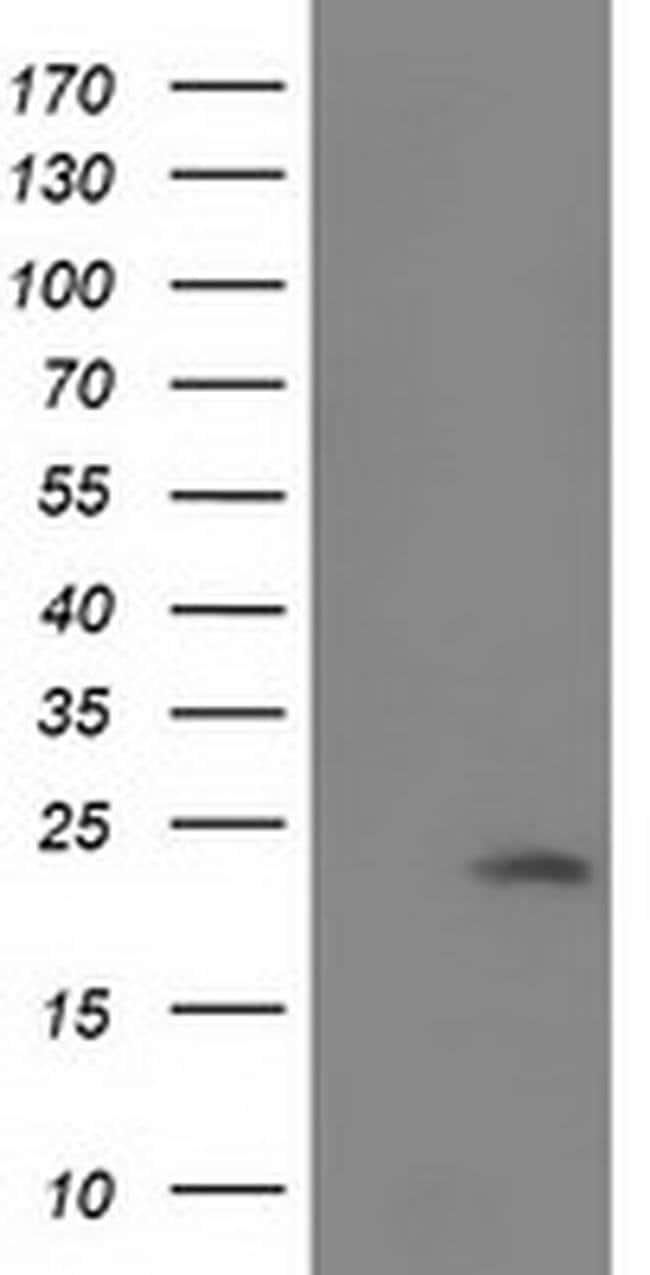 SOD2 Mouse anti-Canine, Human, Clone: OTI1H6, liquid, TrueMAB  100 µL;