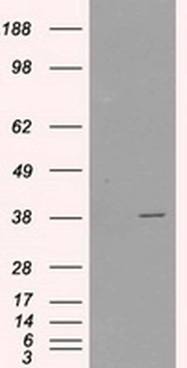 SORD Mouse anti-Human, Clone: OTI1D5, liquid, TrueMAB  100 µL; Unconjugated