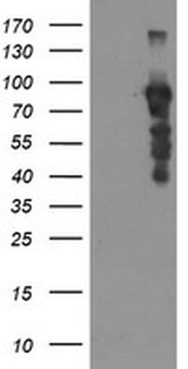 SOX5 Mouse anti-Human, Clone: OTI6B5, liquid, TrueMAB  100 µL; Unconjugated