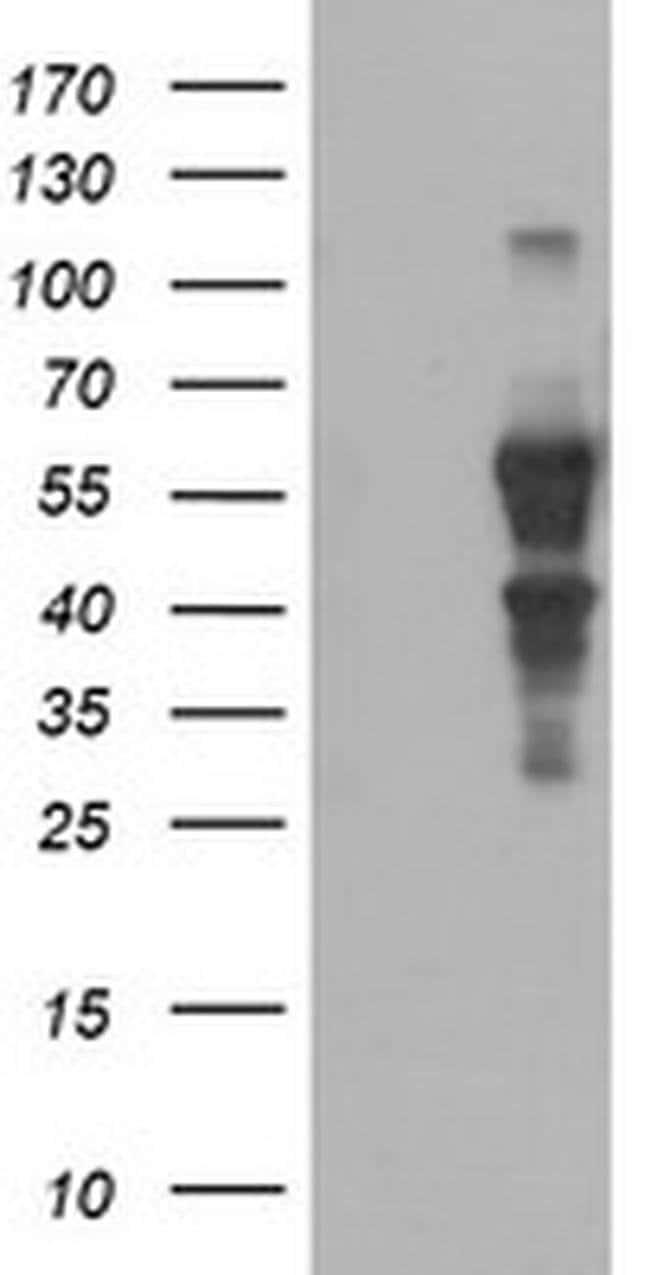 SOX5 Mouse anti-Human, Clone: OTI2A3, liquid, TrueMAB  100 µL; Unconjugated