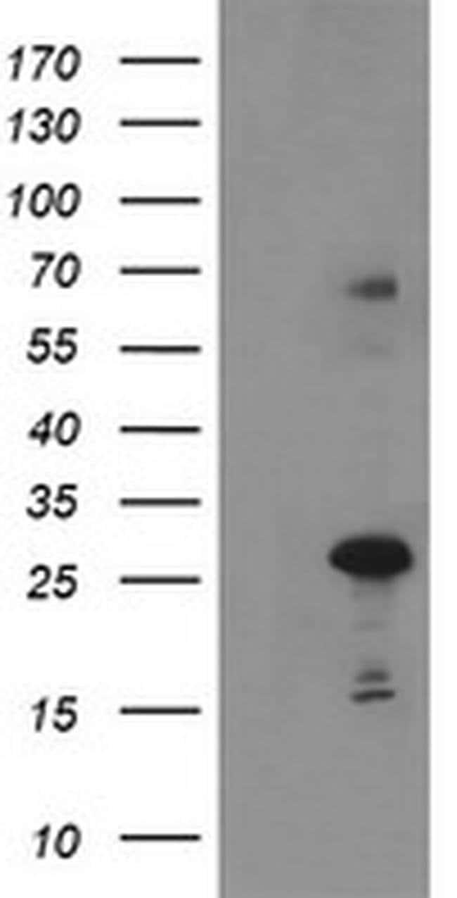 SPG7 Mouse anti-Human, Clone: OTI1G4, liquid, TrueMAB  100 µL; Unconjugated