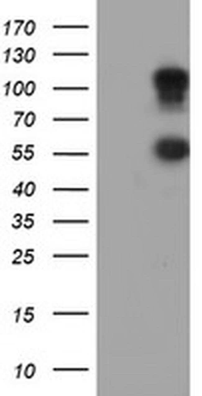 SPINT1 Mouse anti-Human, Clone: OTI4E1, liquid, TrueMAB  100 µL; Unconjugated