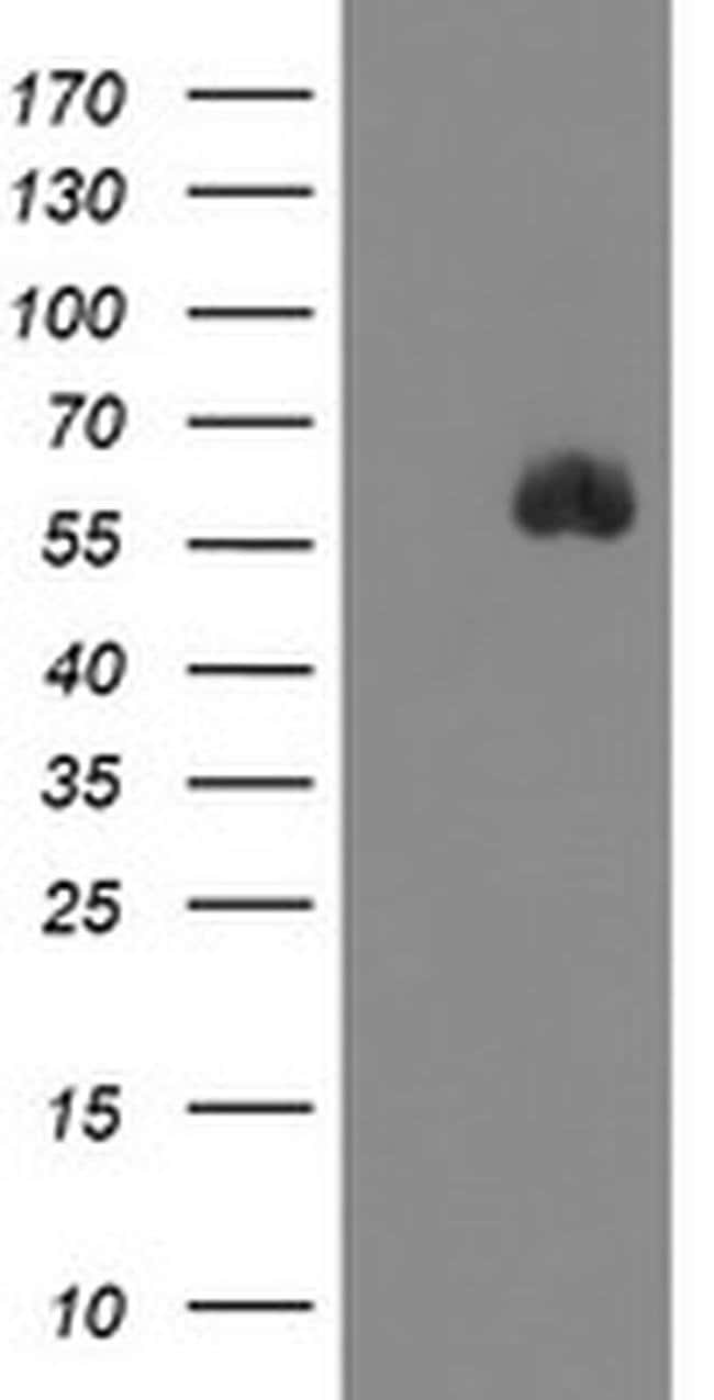 SPINT1 Mouse anti-Human, Clone: OTI1D2, liquid, TrueMAB  100 µL; Unconjugated