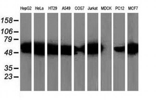 SQSTM1 Mouse anti-Human, Rat, Clone: OTI1E9, liquid, TrueMAB  100 µL;