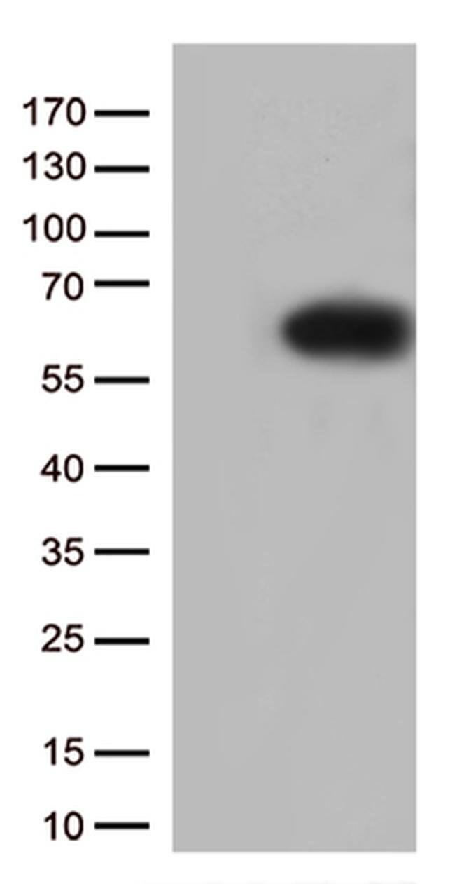 SQSTM1 Mouse anti-Human, Clone: OTI5A1, liquid, TrueMAB  100 µL; Unconjugated