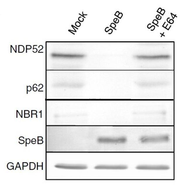 SQSTM1 Mouse anti-Human, Clone: OTI6A7, liquid, TrueMAB  100 µL; Unconjugated