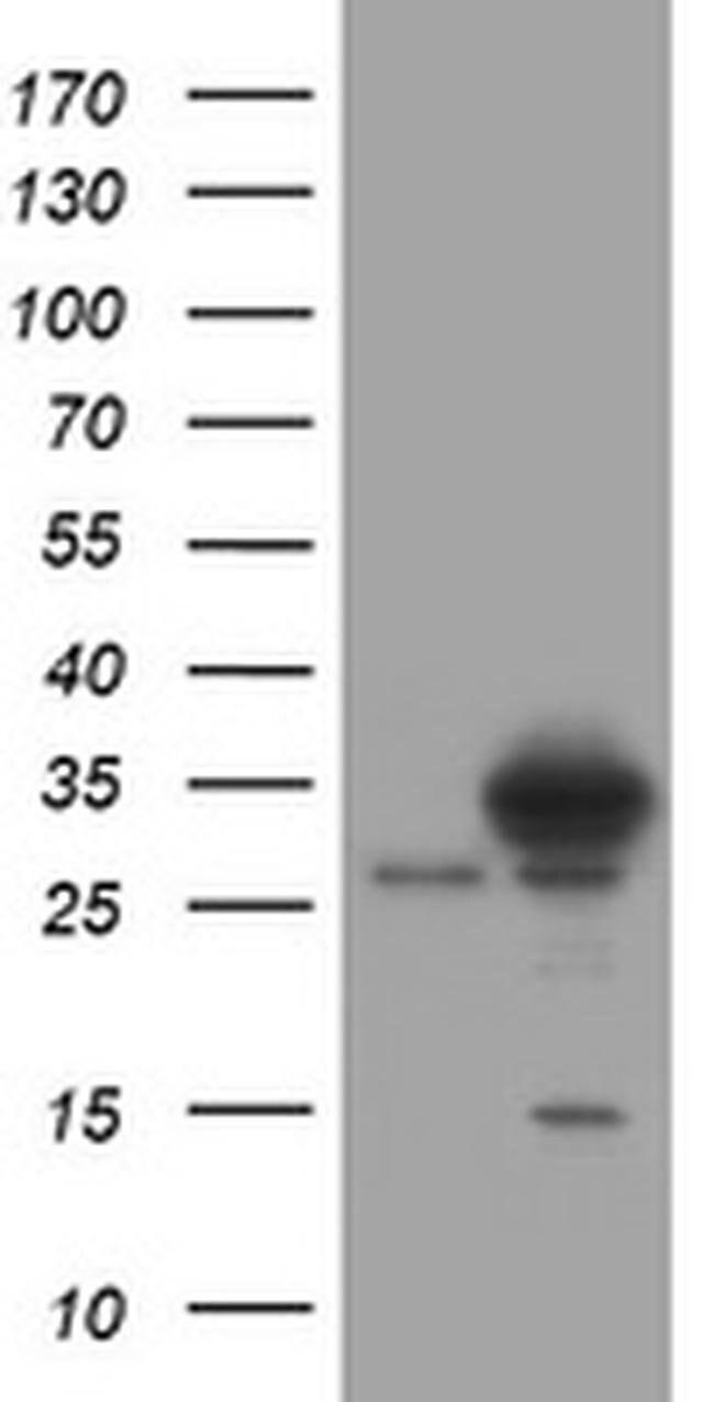 SRPRB Mouse anti-Human, Clone: OTI2D4, liquid, TrueMAB  100 µL; Unconjugated