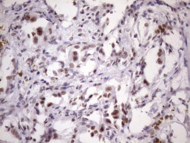 SRSF9 Mouse anti-Human, Clone: OTI5G7, lyophilized, TrueMAB  100 µg;