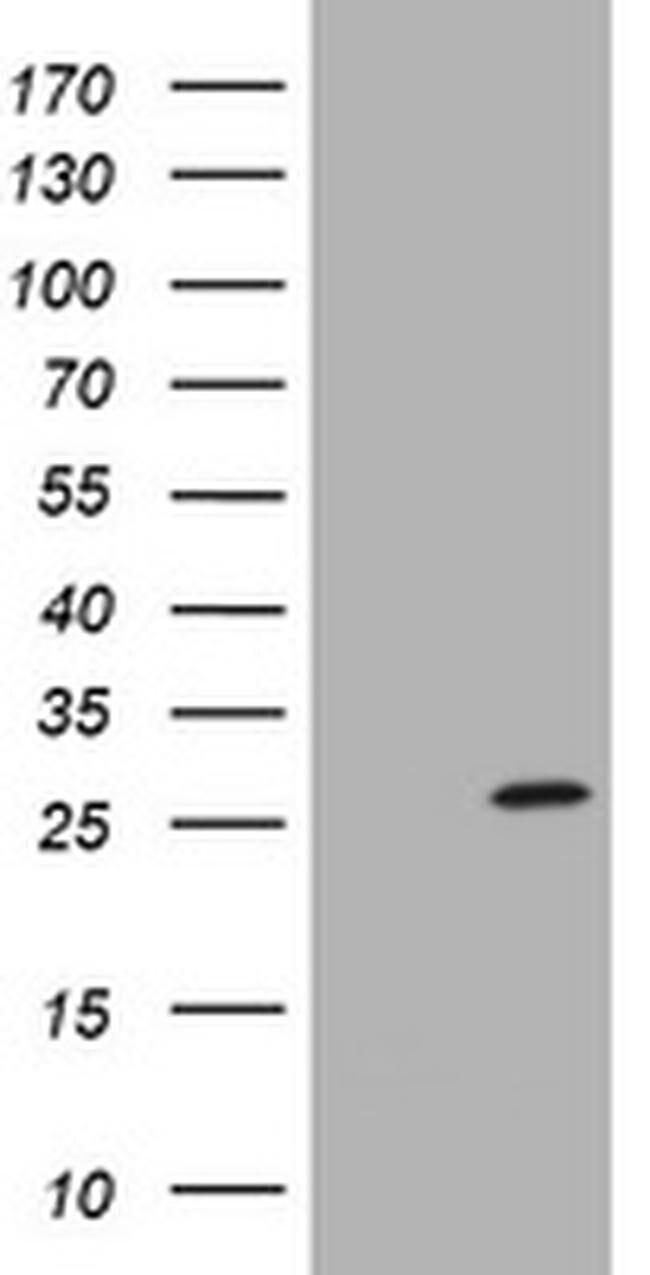 SRY Mouse anti-Human, Clone: OTI1H10, liquid, TrueMAB  100 µL; Unconjugated