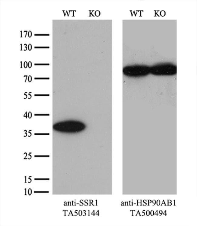 SSR1 Mouse anti-Human, Clone: OTI4H6, liquid, TrueMAB  100 µL; Unconjugated
