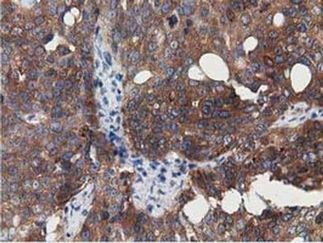 SSSCA1 Mouse anti-Human, Clone: OTI2F5, liquid, TrueMAB  100 µL; Unconjugated