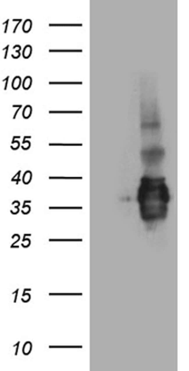 SSU72 Mouse anti-Human, Clone: OTI2E2, lyophilized, TrueMAB  100 µg;