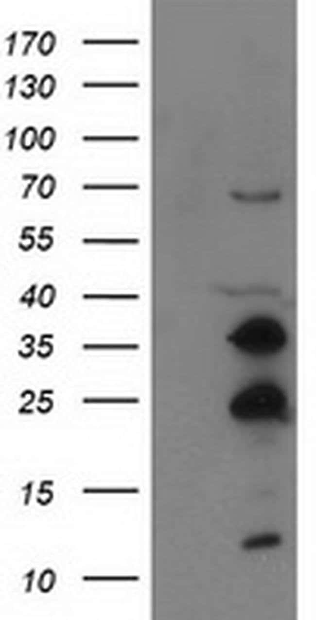 SSX1 Mouse anti-Human, Clone: OTI2E9, liquid, TrueMAB  100 µL; Unconjugated