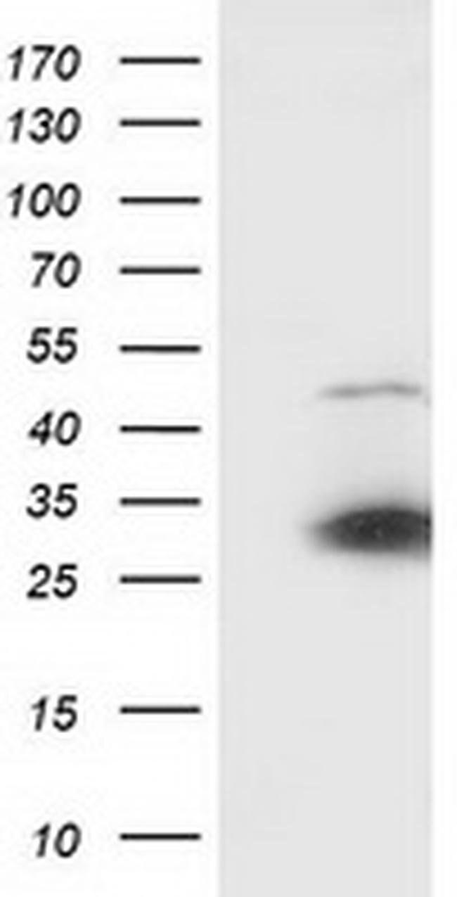 SSX1 Mouse anti-Human, Clone: OTI2G5, liquid, TrueMAB  100 µL; Unconjugated