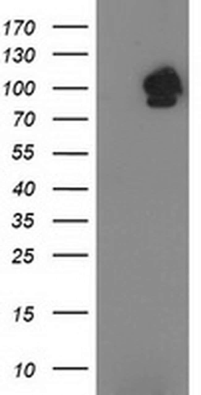 STAT5A Mouse anti-Human, Clone: OTI10H1, liquid, TrueMAB  100 µL;