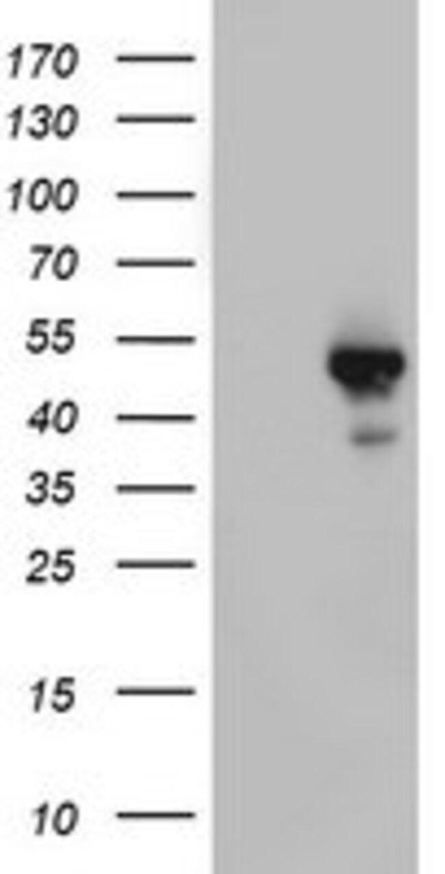 STK11 Mouse anti-Human, Clone: OTI1F10, lyophilized, TrueMAB  100 µg;