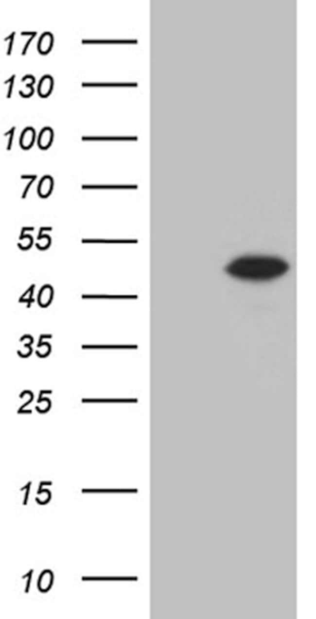 STX18 Mouse anti-Human, Clone: OTI2C4, lyophilized, TrueMAB  100 µg;