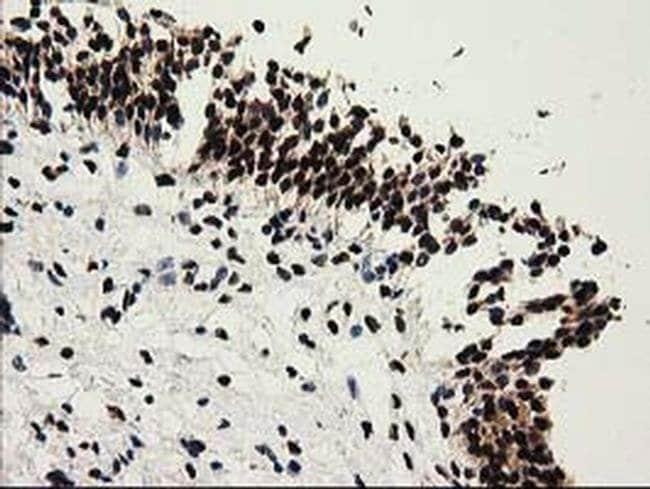 SULT1A1 Mouse anti-Human, Clone: OTI9B7, liquid, TrueMAB  100 µL;