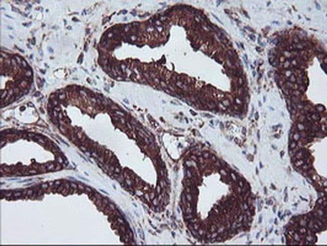 SULT1A1 Mouse anti-Human, Clone: OTI5A1, liquid, TrueMAB  100 µL;