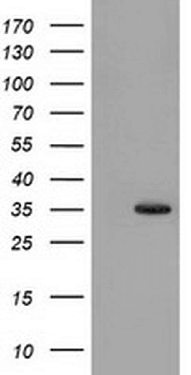 SULT1A1 Mouse anti-Human, Clone: OTI8B8, liquid, TrueMAB  100 µL;