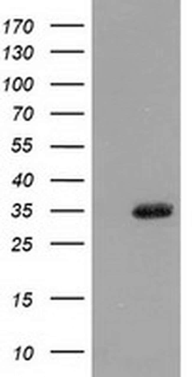 SULT1A1 Mouse anti-Human, Clone: OTI9B7, liquid, TrueMAB  30 µL; Unconjugated