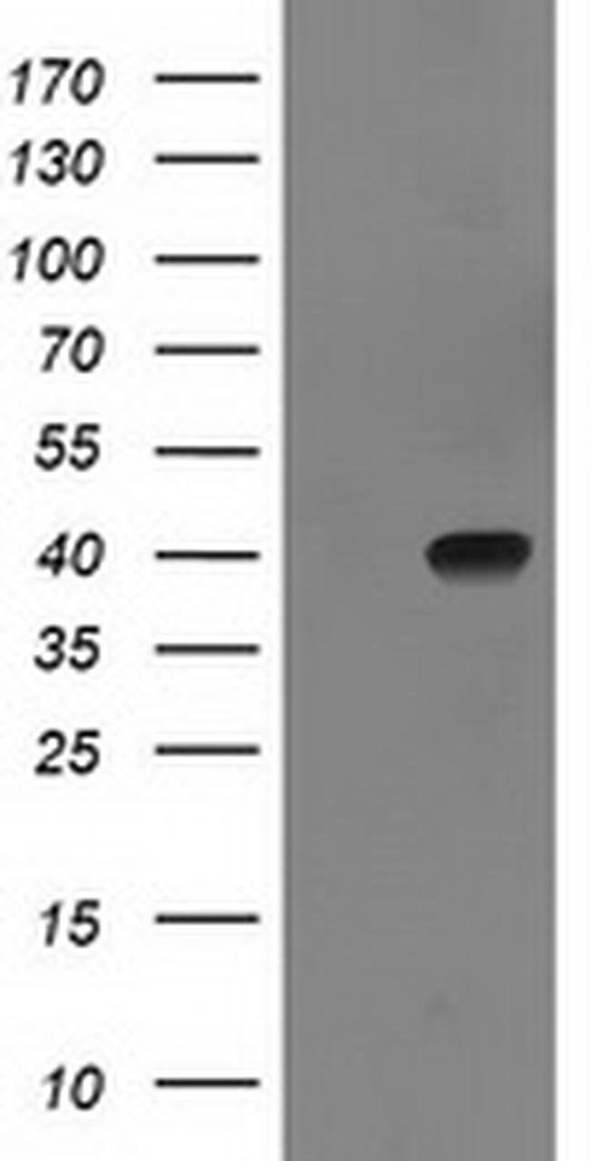SULT1C2 Mouse anti-Human, Clone: OTI5A4, liquid, TrueMAB  100 µL;