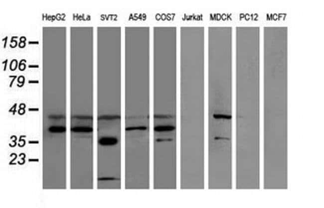 SULT1C2 Mouse anti-Canine, Human, Mouse, Clone: OTI5H1, liquid, TrueMAB