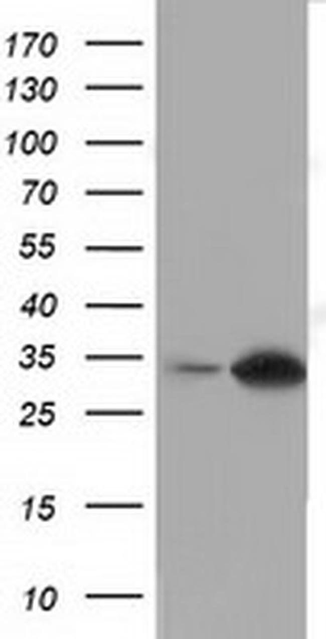 SULT2A1 Mouse anti-Human, Clone: OTI2A6, liquid, TrueMAB  100 µL;