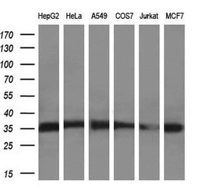 SULT2A1 Mouse anti-Human, Clone: OTI7G10, liquid, TrueMAB  100 µL;