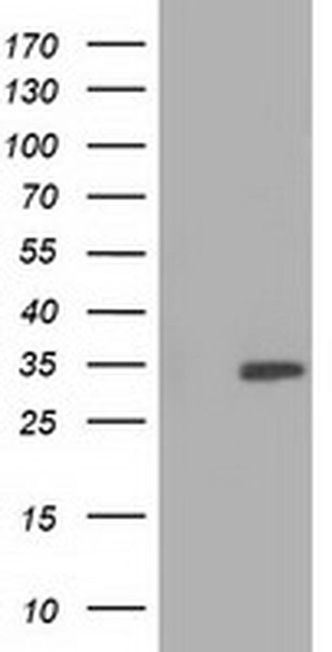 SULT2A1 Mouse anti-Human, Clone: OTI3D4, liquid, TrueMAB  100 µL;