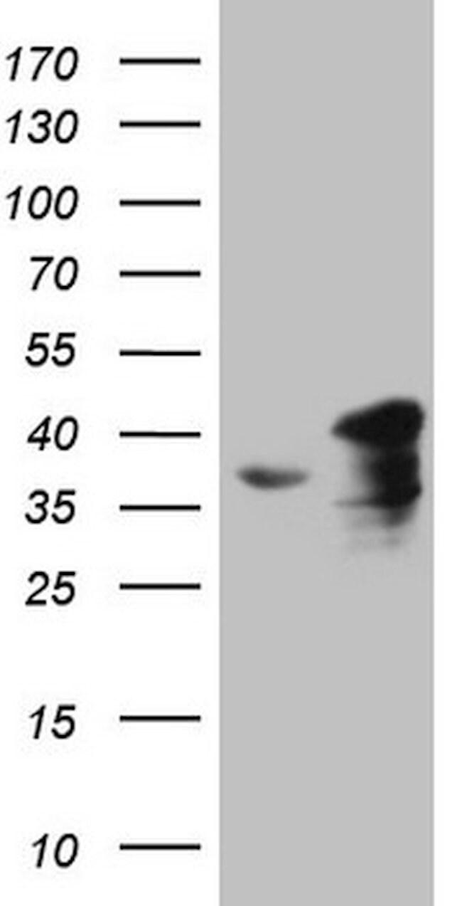 SUPT3H Mouse anti-Human, Clone: OTI3D1, lyophilized, TrueMAB  100 µg;