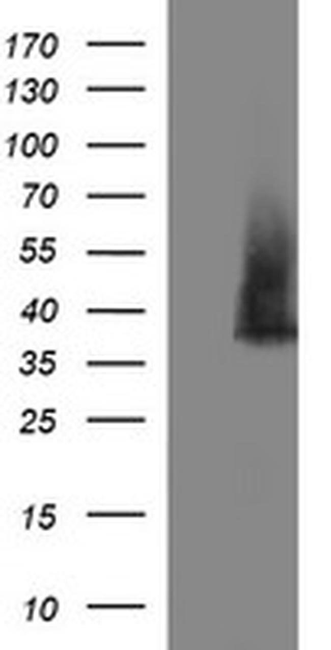 SYP Mouse anti-Human, Clone: OTI2D8, liquid, TrueMAB  100 µL; Unconjugated