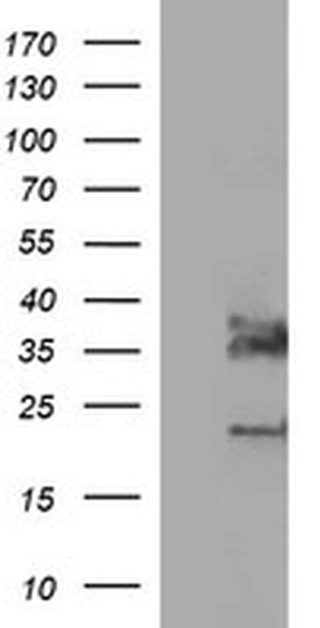 SYP Mouse anti-Human, Clone: OTI1C9, liquid, TrueMAB  100 µL; Unconjugated