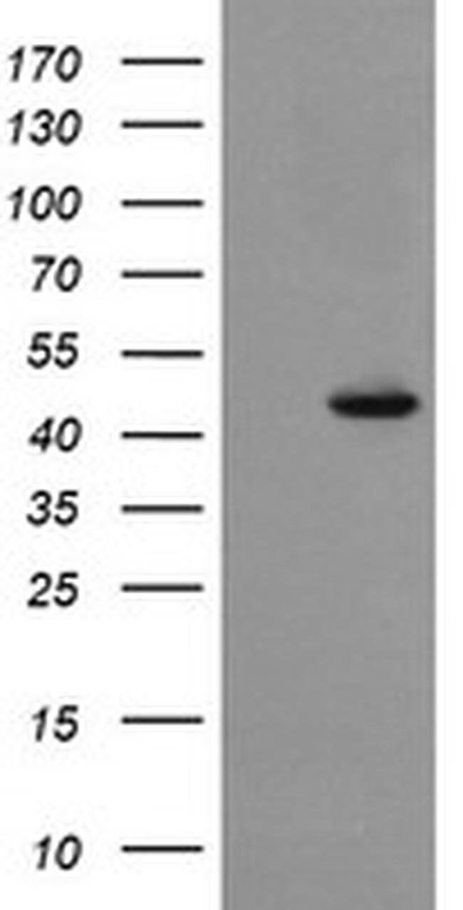 SYT4 Mouse anti-Human, Clone: OTI2D3, liquid, TrueMAB  100 µL; Unconjugated