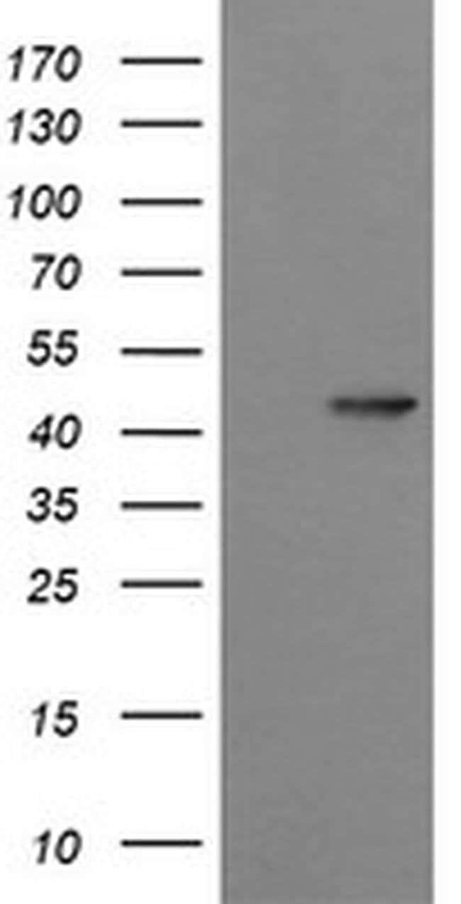 SYT4 Mouse anti-Human, Clone: OTI4H3, liquid, TrueMAB  100 µL; Unconjugated