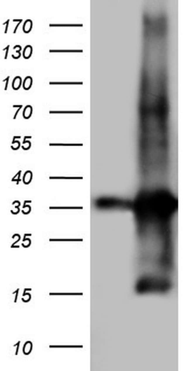TACC2 Mouse anti-Human, Clone: OTI4D10, lyophilized, TrueMAB  100 µg;