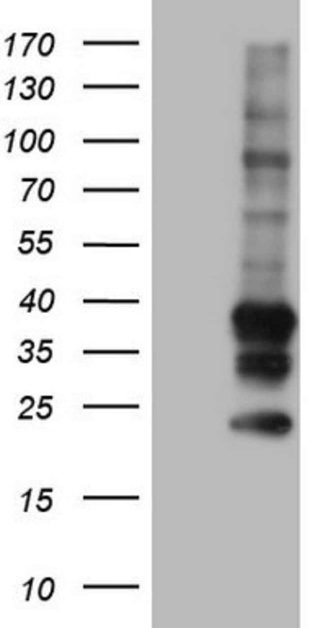 TACC2 Mouse anti-Human, Clone: OTI2E9, lyophilized, TrueMAB  100 µg;