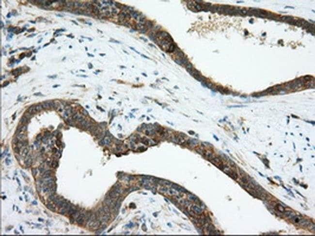 TACC3 Mouse anti-Human, Clone: OTI1E4, liquid, TrueMAB  100 µL; Unconjugated