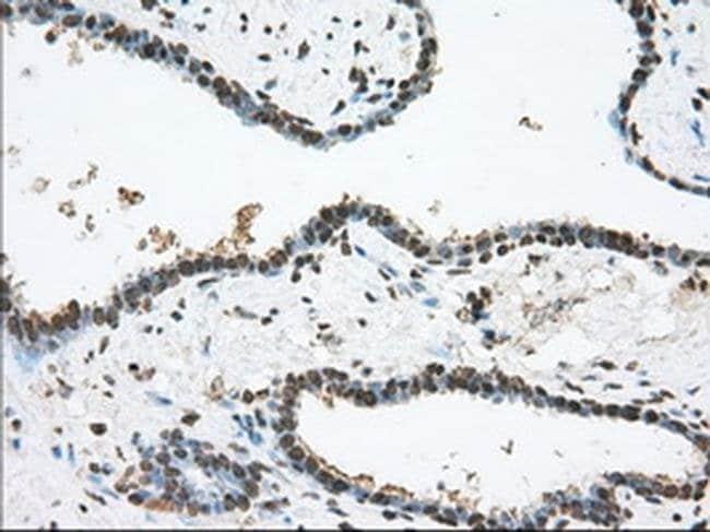 TACC3 Mouse anti-Human, Clone: OTI6C6, liquid, TrueMAB  100 µL; Unconjugated