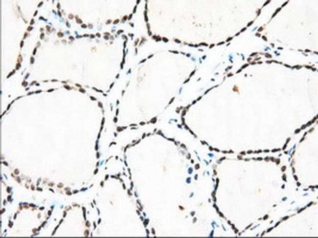 TACC3 Mouse anti-Human, Clone: OTI1E8, liquid, TrueMAB  100 µL; Unconjugated