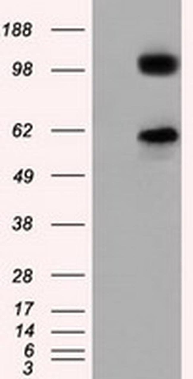 TACC3 Mouse anti-Human, Clone: OTI8F6, liquid, TrueMAB  100 µL; Unconjugated