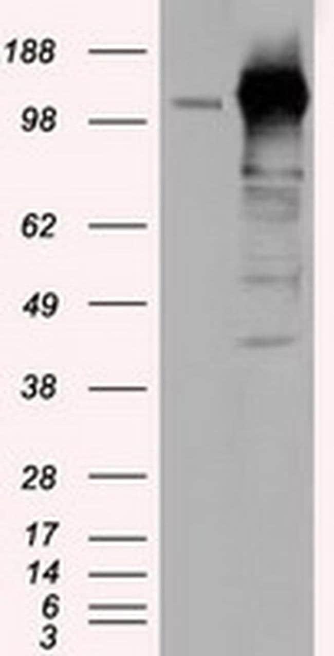 TACC3 Mouse anti-Human, Clone: OTI7B11, liquid, TrueMAB  100 µL; Unconjugated