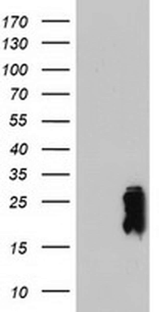 TAGLN Mouse anti-Human, Mouse, Clone: OTI8C8, liquid, TrueMAB  100 µL;