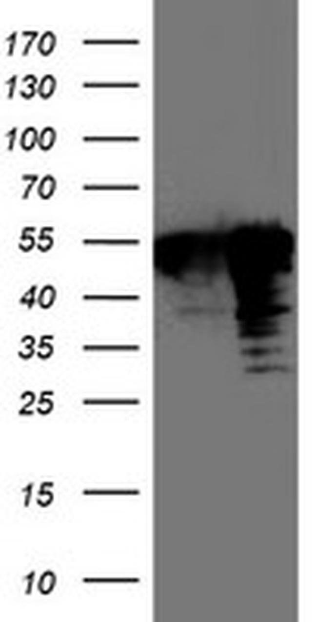 TAL1 Mouse anti-Human, Clone: OTI6H6, liquid, TrueMAB  100 µL; Unconjugated